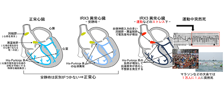 【図1】正常人でIRX3異常が運動時不整脈を起こす機序