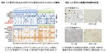 「メタボ関連肝がんに特異的なバイオマーカーを発見」【田中真二 教授】