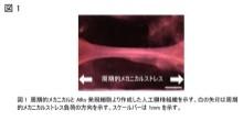 「三次元構造を持つ人工腱様組織の開発」【淺原弘嗣 教授】