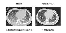 東京医科歯科大学が先天性肺胞蛋白症患児に対する造血細胞移植による治療に世界で初めて成功
