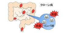 「クローン病発症に関わる遺伝子が炎症を起こす原因細胞の生死を決めることを発見」【渡辺守 教授】