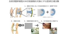 「自家滑膜幹細胞の半月板損傷を対象とする医師主導治験」開始のお知らせ【関矢一郎 教授】