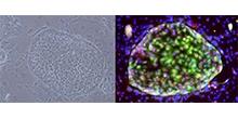 「ヒトiPS細胞を用いたB型肝炎ウイルスの感染培養系の開発に成功」【朝比奈靖浩 教授】
