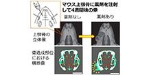 「世界初、手術が不要の注射による簡便な顎骨造成をマウスで成功」【青木和広 准教授】