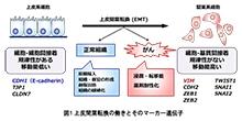 「がんの浸潤・転移にかかわる上皮間葉転換(EMT)を促進するマイクロRNA(miR-544a)の発見」【稲澤譲治 教授】