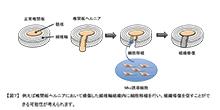 「椎間板線維輪の恒常性を維持する遺伝子とその分子メカニズムの解明」【浅原弘嗣 教授】