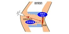 「変形性膝関節症の進行を抑えるのに滑膜幹細胞の定期的関節内注射が有効」【関矢一郎 教授】