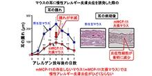「アレルギー炎症を引き起こす新たな鍵分子を発見」【山西吉典 講師】