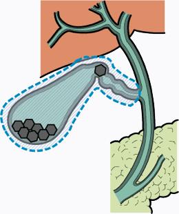 炎症 胆嚢