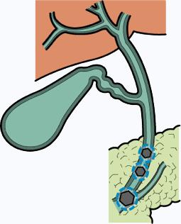 胆嚢 を 取る と どうなる
