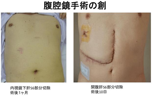腹腔鏡下肝切除:特色のある治療...