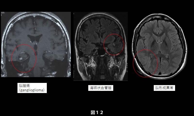 葉 側 てんかん 頭 内側側頭葉てんかん|福岡市西区の脳神経外科 はしぐち脳神経クリニック